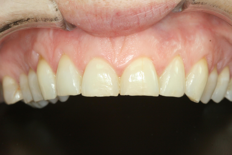 grincement des dents paris 17 me 75017 dentiste dr ylann rouah. Black Bedroom Furniture Sets. Home Design Ideas